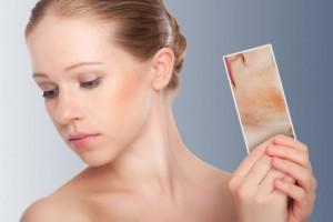 5 способов чтобы избавиться от покраснений на коже