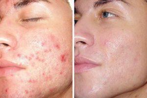 Особенности проведения дермабразии для устранения дефектов кожи