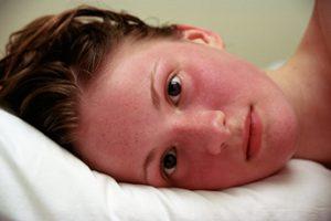 Гиперемия кожи, причины, симптомы, устранение, профилактика