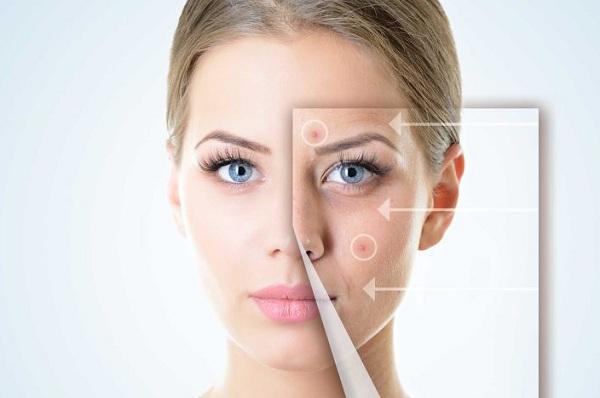 Черные точки ( комедоны ) на коже лица и тела
