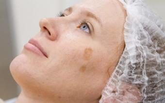 Когда косметолог может отказать: кожные болезни и не только