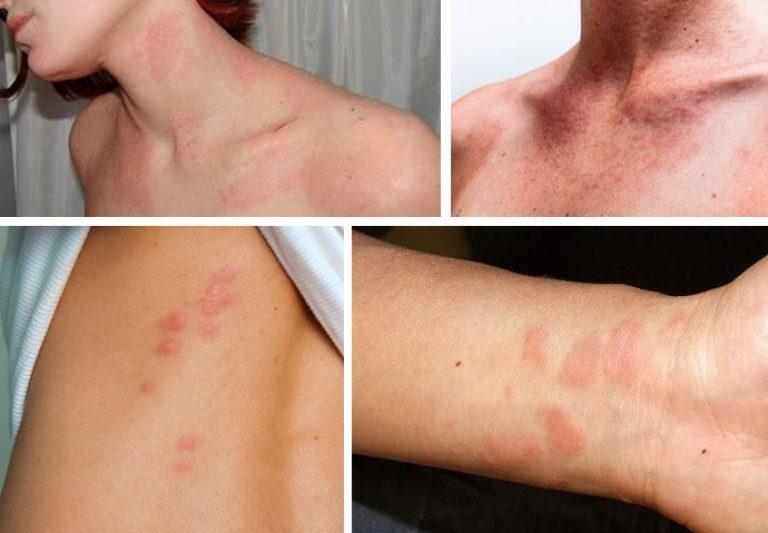 Как лечить аллергию на коже: красные пятна