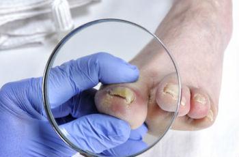 7 эффективных средств от грибка ногтей: какое выбрать и как применять