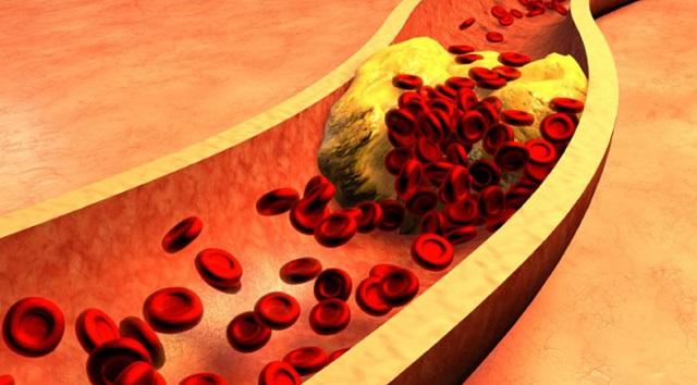 Как уменьшить уровень холестерина в крови?