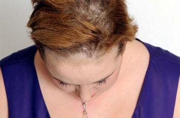 Карбункул. Причины, симптомы и лечение