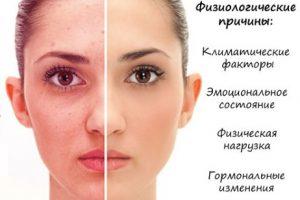 Краснеет и шелушится кожа на лице, чешется, сохнет после алкоголя, чистки, возле носа, брови