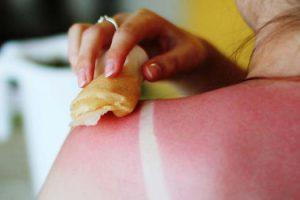 Лечение солнечного ожога в домашних условиях