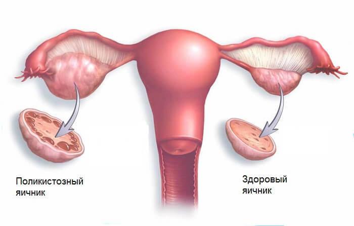 Поликистозный синдром яичников: 5 симптомов, которые нужно знать!