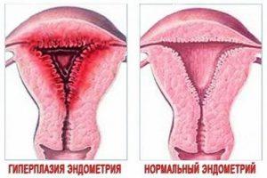 Гиперплазия матки