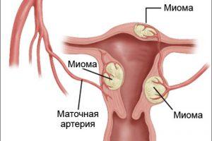 Миома: причины и лечение