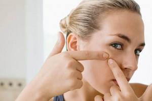 Методы лечения постакне: как сгладить шрамы на лице