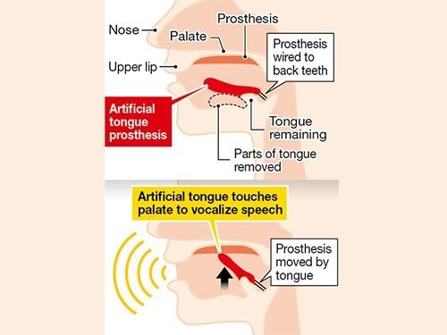 В Японии разрабатывают протез языка