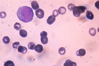 Найдено лекарство против агрессивного рака крови