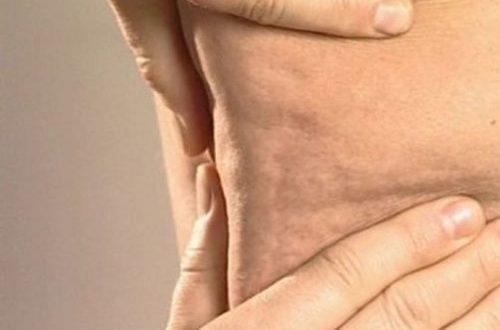 Необычная газировка войдет в курс противораковой терапии