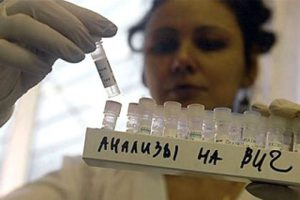 Ученые нашли необычное спасение от ВИЧ