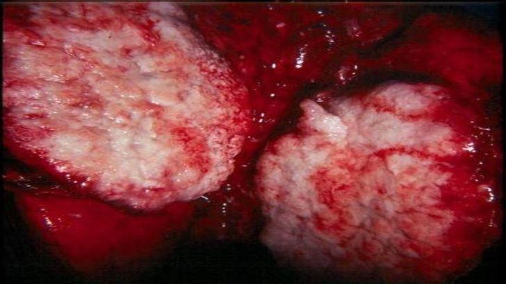Рак легких может «скрываться» 20 лет