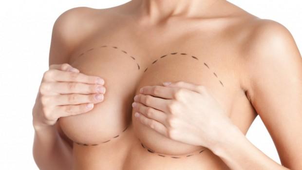 Мастэктомия продлевает женщине жизнь