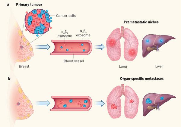 Локализацию метастазов определяют интегрины опухолевых экзосом