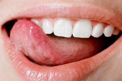Состояние здоровья полости рта зависит от качества романтических отношений