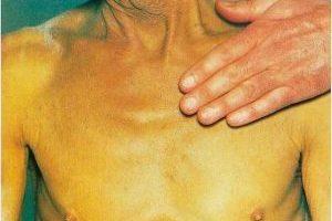 Признаки гепатита С и способы лечения