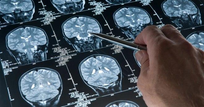 Опухоль головного мозга – все, что нужно знать о заболевании