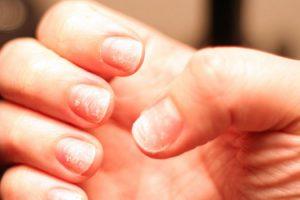 Почему слоятся ногти и как от этого избавиться?