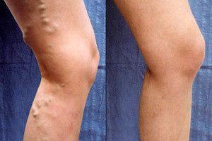 Варикоз ног. Когда операции не избежать?