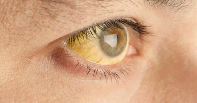 Синдром Жильбера – все особенности недуга
