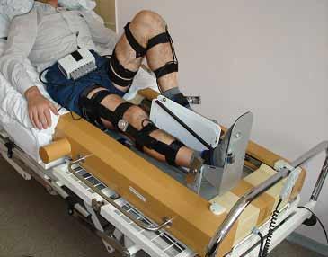 Функциональная электростимуляция — метод, позволяющий облегчить сокращение мышц с ограниченной функциональностью