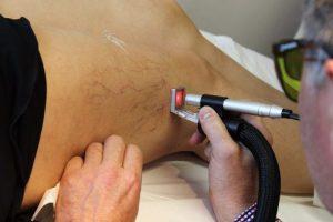 Лечение варикоза новейшими методами