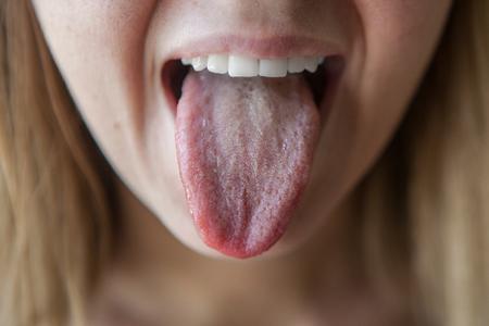 Признак какой болезни белый налет на языке. Возможные заболевания