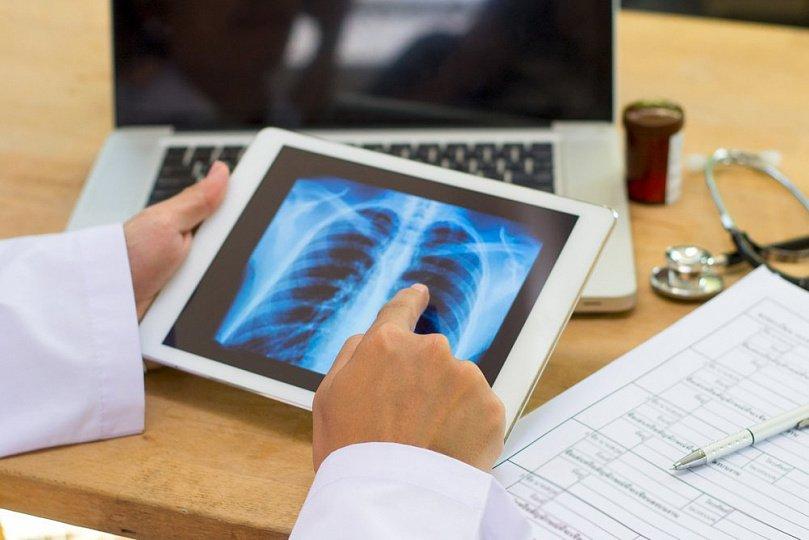 Неожиданные причины пневмонии