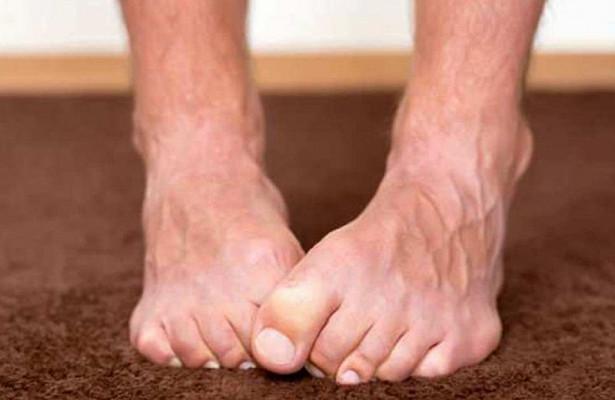 От грибков до диабета: о чем говорят наши ступни