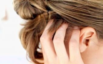 Не знаете причину зуда? Разбираемся, почему чешется волосистая часть головы и шея