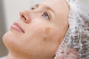 Как вывести пигментные пятна на лице: причины и лечение