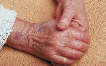 Кровоизлияния на коже без причины, с чего начать лечение?