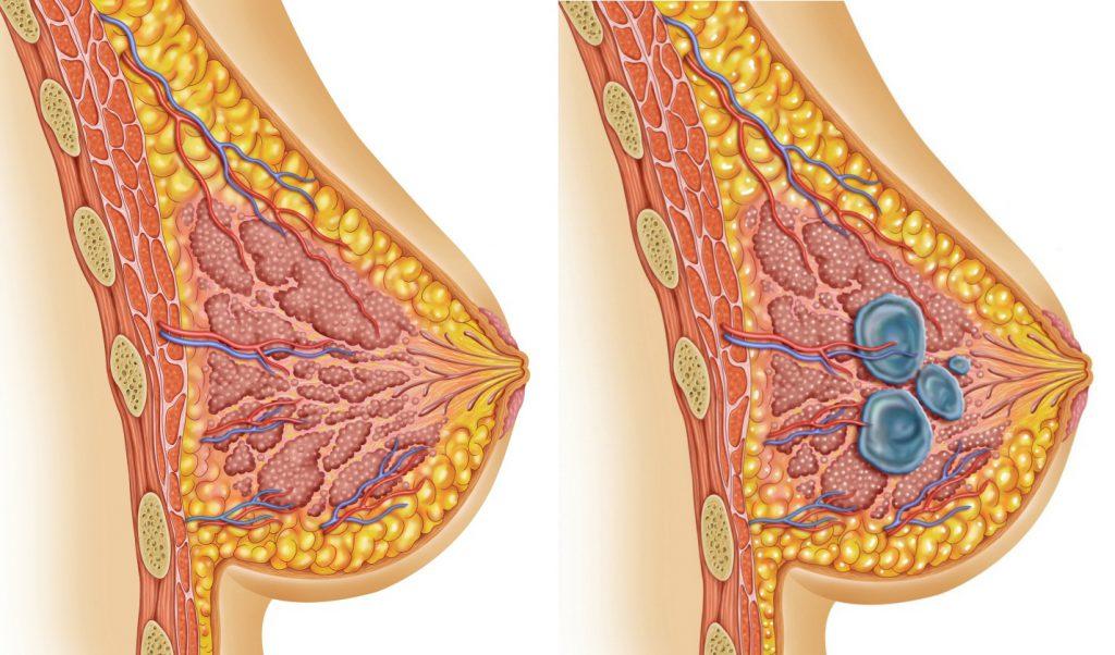 Мастопатия молочной железы: что это такое и как это лечить