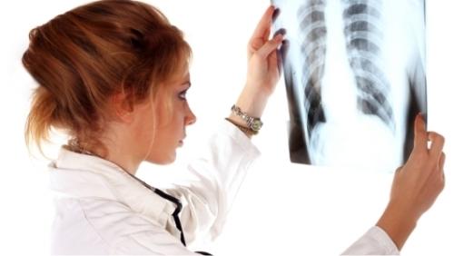 Медики нашли новый способ лечения фиброза легких