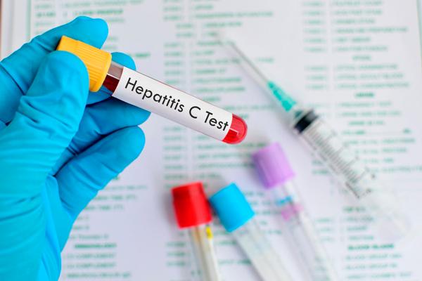 Французские исследователи выяснили, как снизить риск последствий гепатита C Читайте больше на http://www.medpulse.ru/health/381518.html