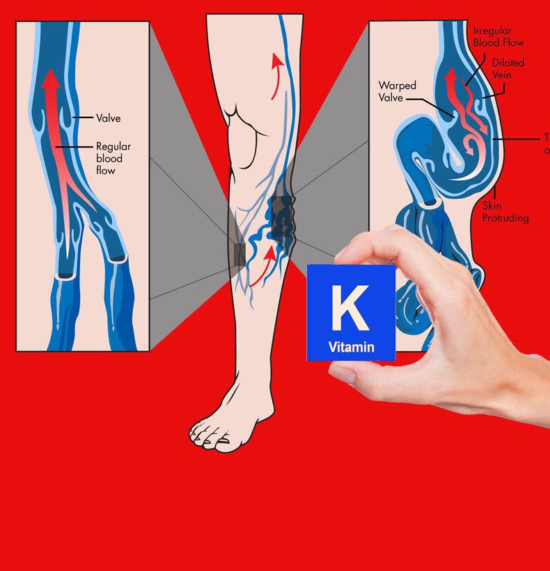 Витамин K для уменьшения варикоза