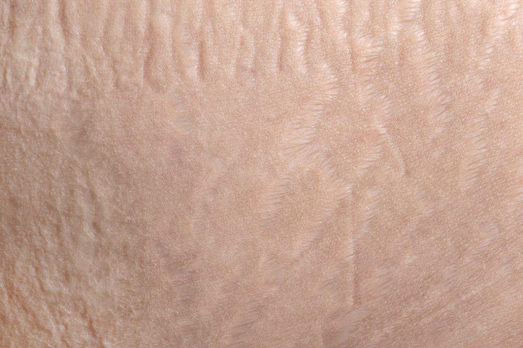 Причины появления повышенного шелушения кожи