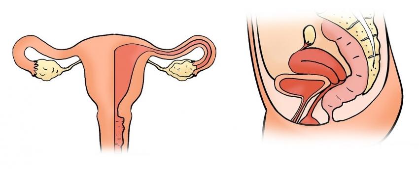 Опущение матки: нужна ли операция?