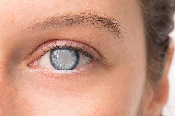 Проблемы со зрением после 40 лет: катаракта, глаукома и другие