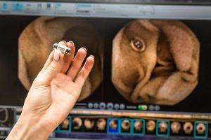 Колоноскопия под наркозом – или с видеокапсулой?