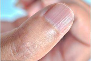 Белые пятна, гребни, утолщения: о каких скрытых болезнях могут рассказать наши ногти?