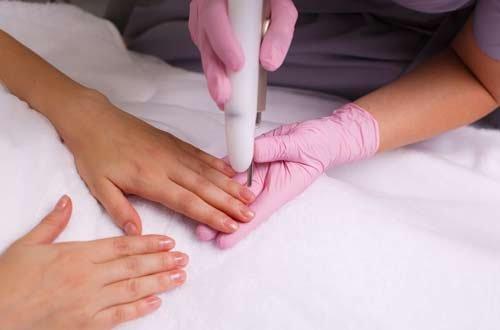 Грибок ногтей предлагают лечить с помощью лазера