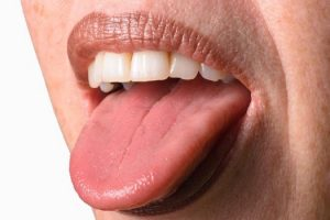 От чего болит язык?