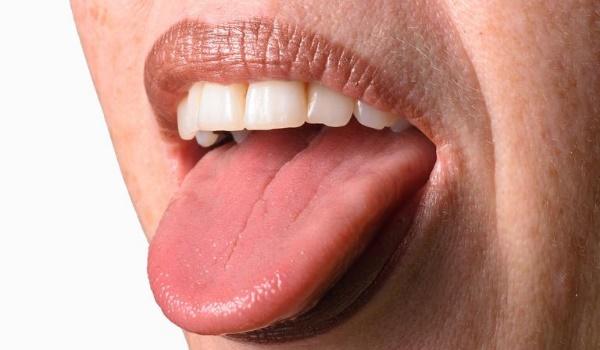 Что делать, если губы дали трещину?
