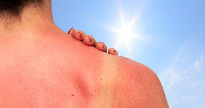 Солнечный дерматит – как быстро избавиться от фотодерматоза?