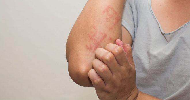 5 летних проблем с кожей: рассказываем, как с ними справиться